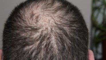 Reasons for hair loss and tips how to control hair fall